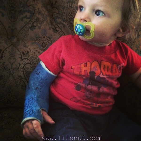 toddler in arm cast